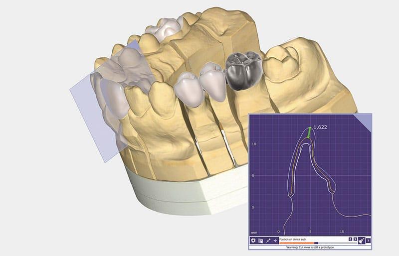 exocad lanza PartialCAD para diseño de estructuras dentales parciales