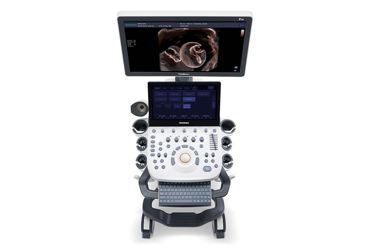 SonoScape presente en Medica 2019
